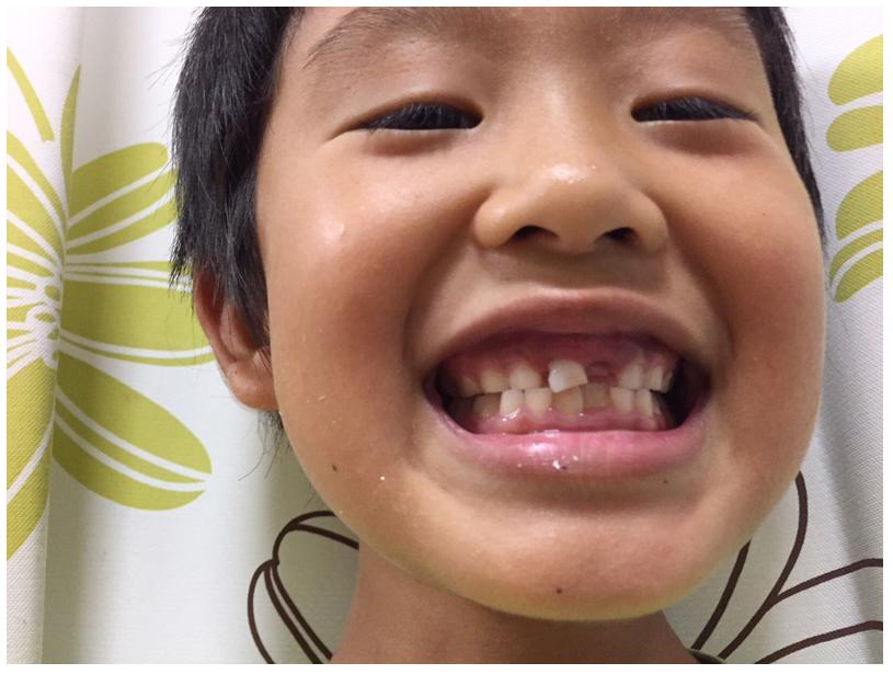 歯の抜けた長男。